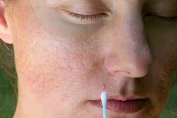 cover large pores